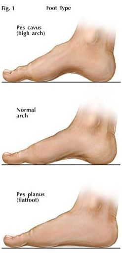Types of Feet Arch